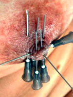 Breast needleplay pics