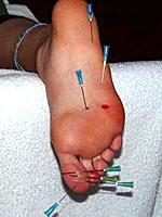Needle play bastinado for feet